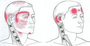 SCM Muscle Pain Pattern