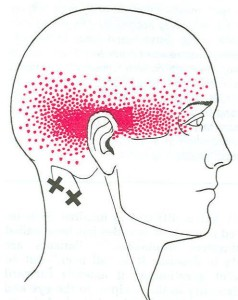 Suboccipital Muscle Pain Pattern