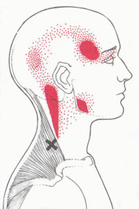 Upper Trapezius Pain Pattern