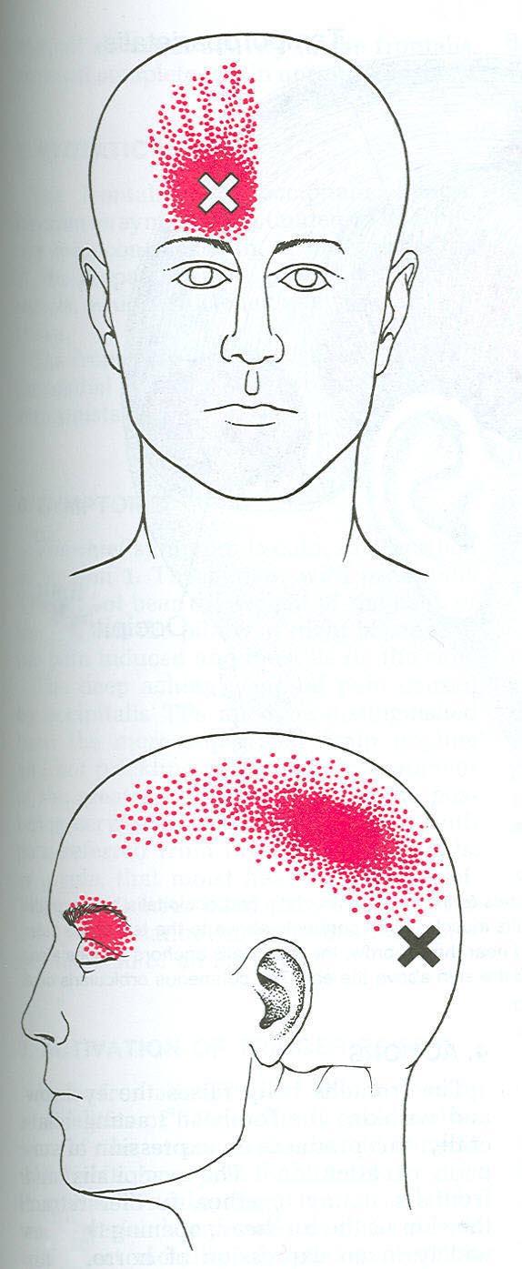 Headache faq occipitofrontalis web diagram pooptronica Image collections