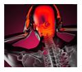new-migraine