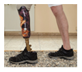 new-phantom-limb-pain