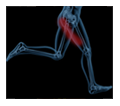 new-sciatica-pain