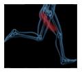 new-sciatica-pain