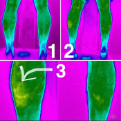 infrared imaging of injury